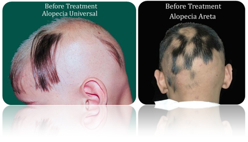 FAQ's For Alopecia Best Male Or Female Pattern Baldness Treatments