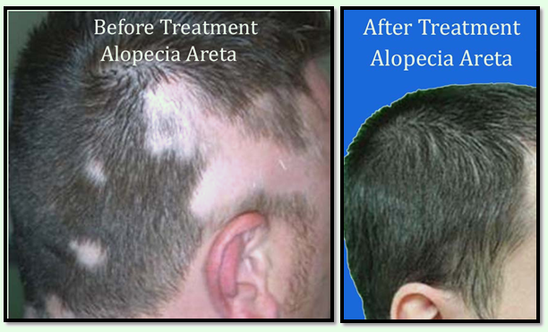 What is alopecia lichen planopilaris?
